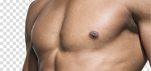 Гинекомастия (хирургическая коррекция груди у мужчин)